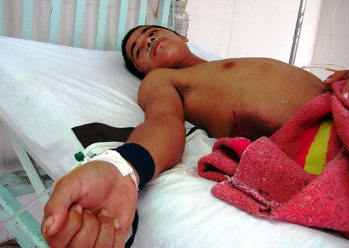 Nạn nhân đang được cấp cứu tại Bệnh viện đa khoa Phú Yên. Ảnh: Khoa Thy
