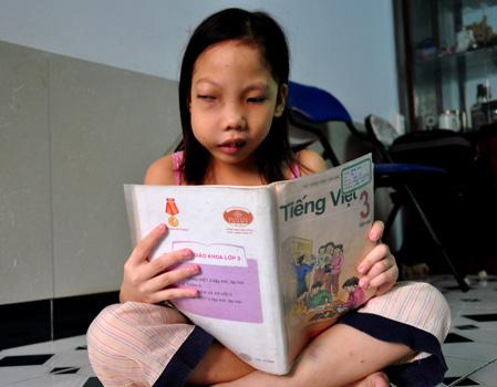 Luôn muốn được đến trường, Trang không biết cuộc sống mình chỉ còn được tính bằng ngày vì bệnh tật. Ảnh: Thiên Chương.