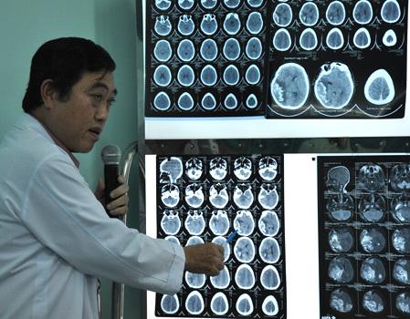 Biến chứng viêm màng não do viêm tai giữa dễ gây tử vong. Ảnh: Thiên Chương.