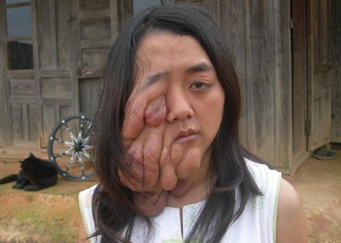 Kiều Thị Mỹ Dung 22 năm qua mang khối u mỗi ngày một lớn trên mặt, che lấp cả mắt của em. Ảnh: Quốc Dũng