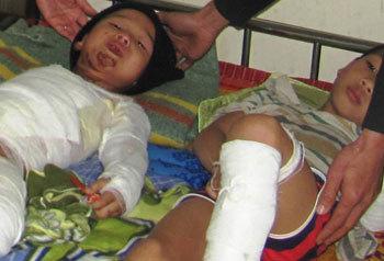 Hai anh em đang điều trị tại bệnh viện. Ảnh: V.Đ
