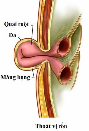 Một đoạn ruột có thể bị đẩy ra theo chỗ thoát vị.
