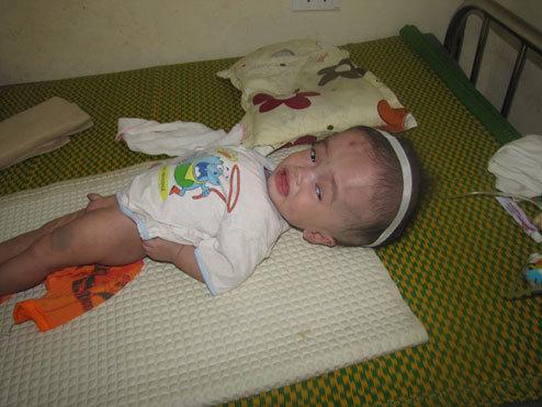 Hiện ống thông não thủy của cháu bé đã bị tắc khiến đầu bé ngày càng to lên, cần phải phẫu thuật khẩn cấp. Ảnh: H.H