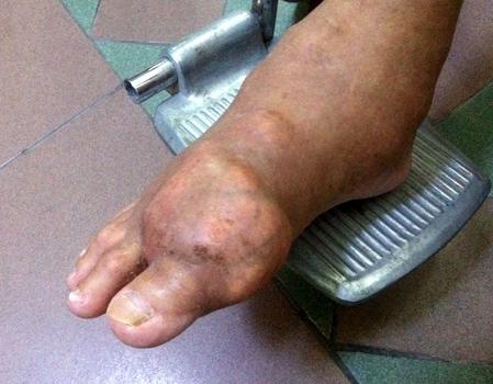 Khớp chân của bệnh nhân phù nề bởi các khối tôphi do Gút gây nên. Ảnh: Thiên Chương
