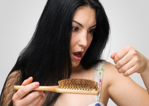 Rụng tóc nhiều đã trở thành nỗi lo của không ít người. Ảnh minh họa: ushairrestoration.com