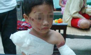 Bé trai 5 tuổi bị gấu ăn mất hai cánh tay