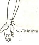 bam-huyet-giam-dau-cho-benh-nhan-ung-thu-vom-hong-3
